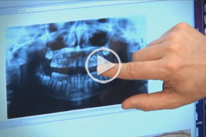 Early Orthodontics Video Thumbnail at Reynolds Orthodontics in Greensboro NC