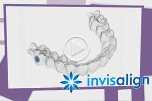 Invisalign Video Thumbnail at Reynolds Orthodontics in Greensboro NC